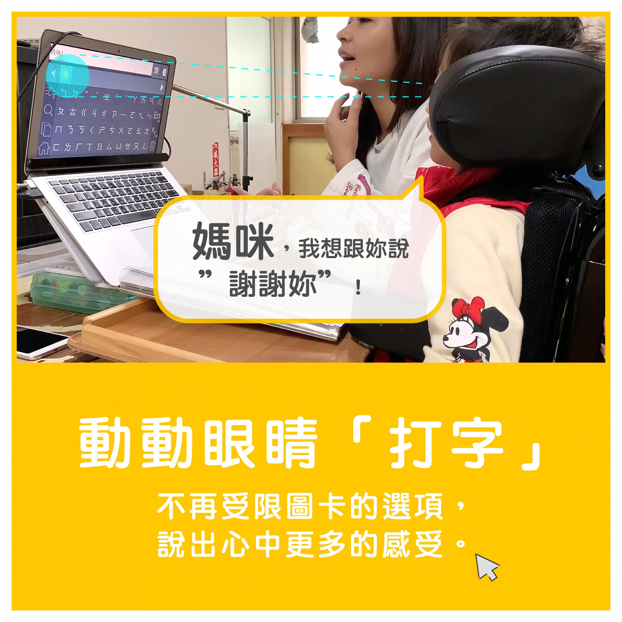 重症孩子用眼動軟體打字
